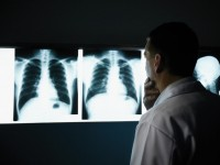 Private practice Radiology might be a thing of the past